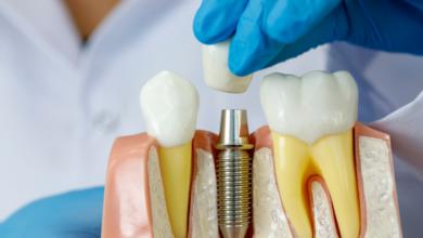 dental-implant-procedure
